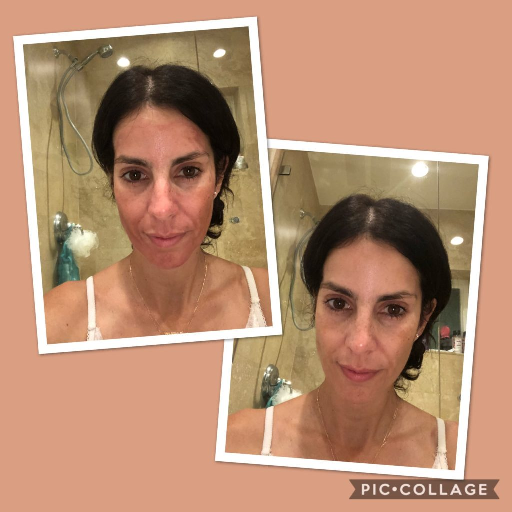 At home facial peel review images 787